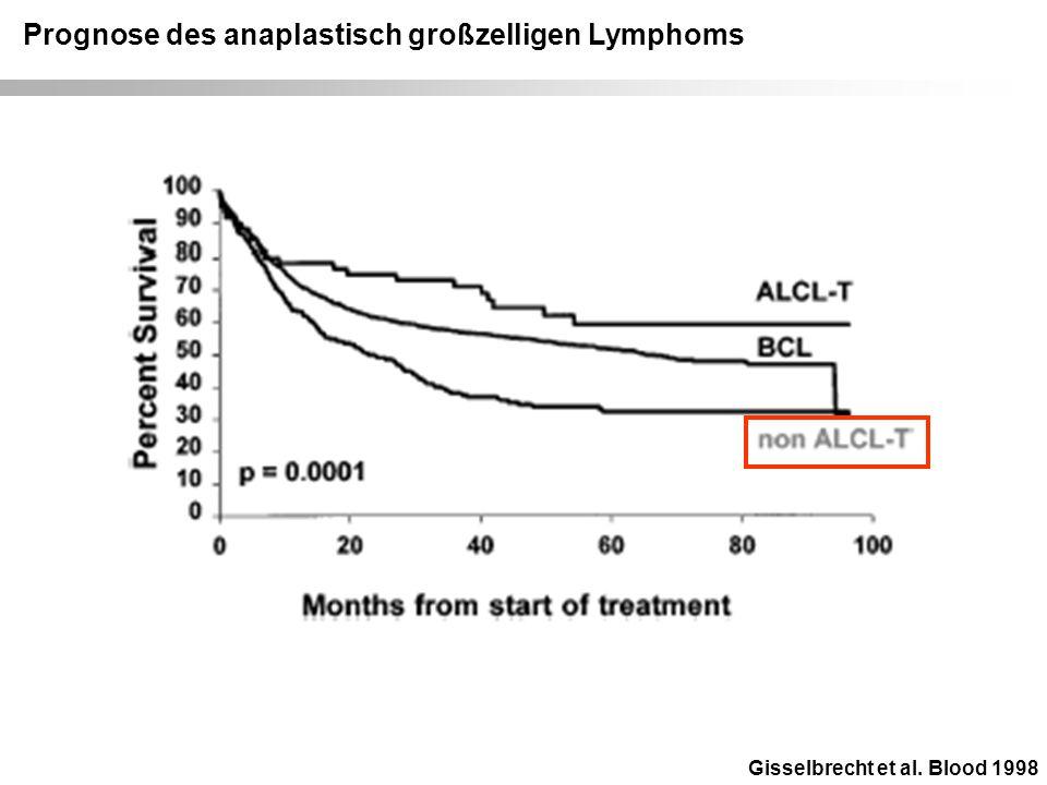 Prognose des anaplastisch großzelligen Lymphoms
