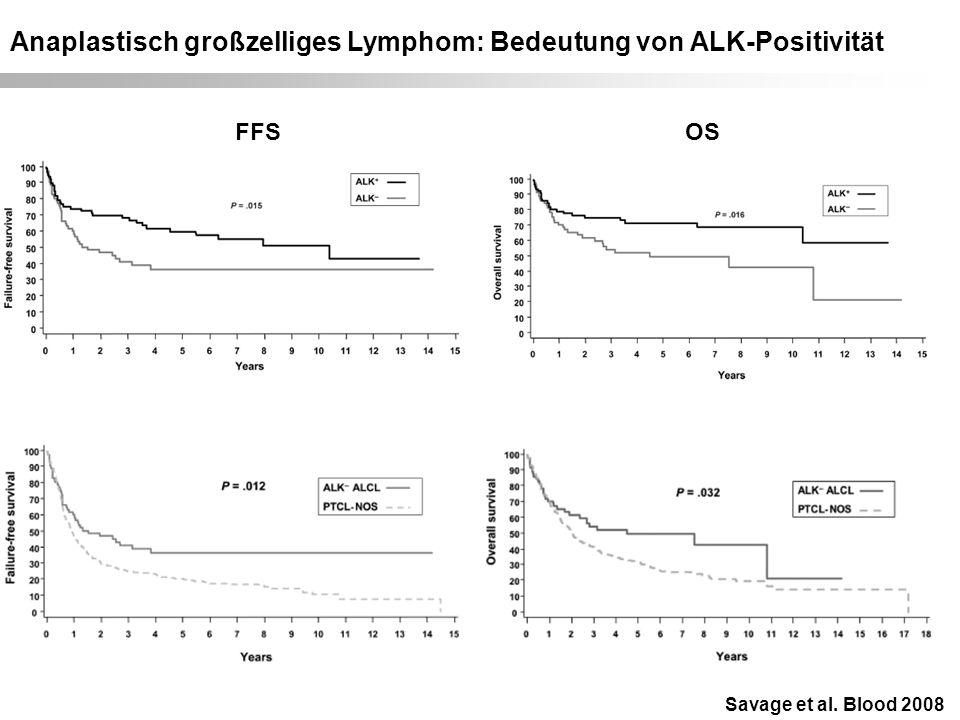 Anaplastisch großzelliges Lymphom: Bedeutung von ALK-Positivität