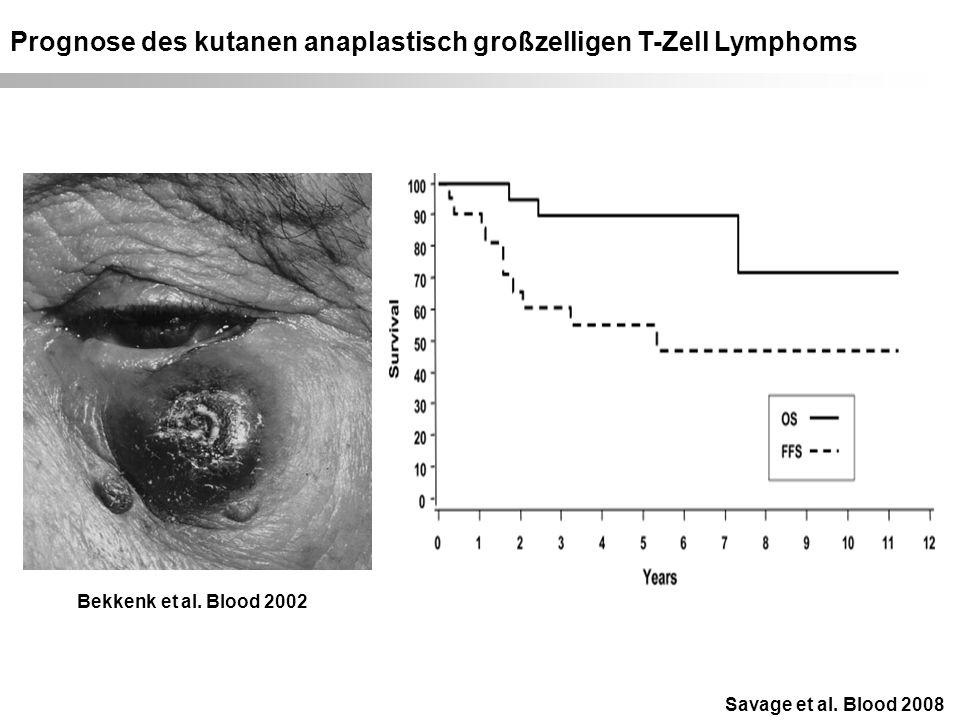Prognose des kutanen anaplastisch großzelligen T-Zell Lymphoms