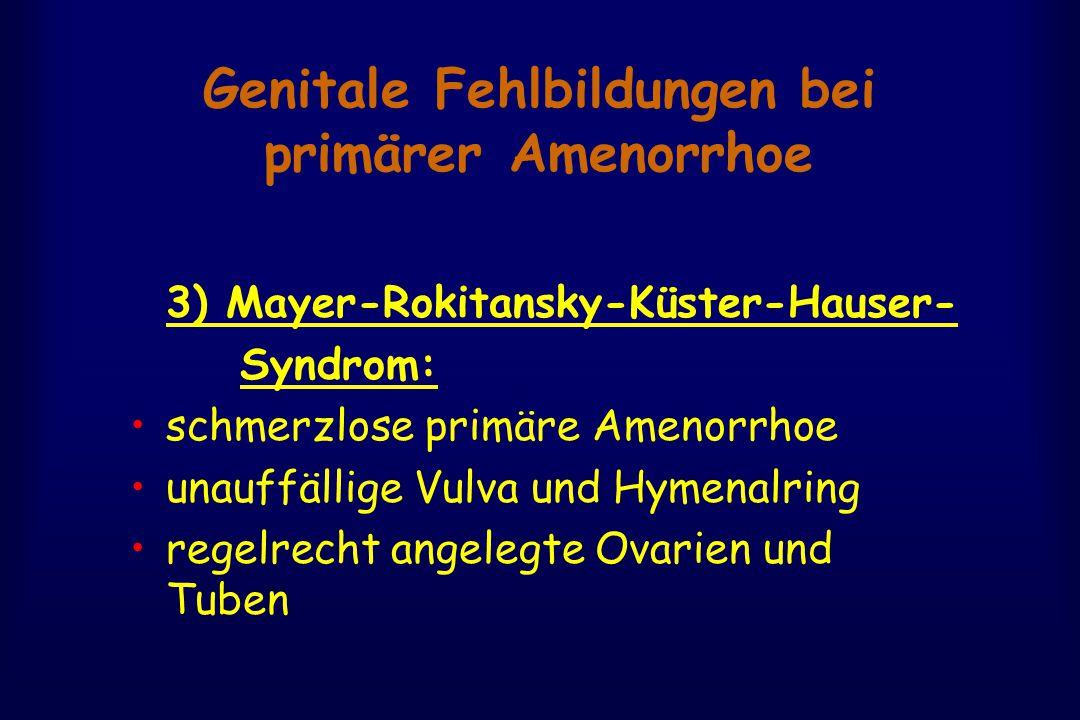Genitale Fehlbildungen bei primärer Amenorrhoe