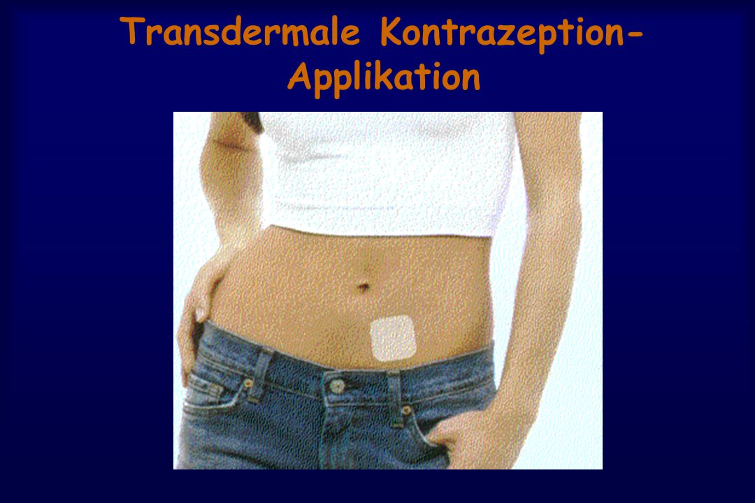 Transdermale Kontrazeption- Applikation