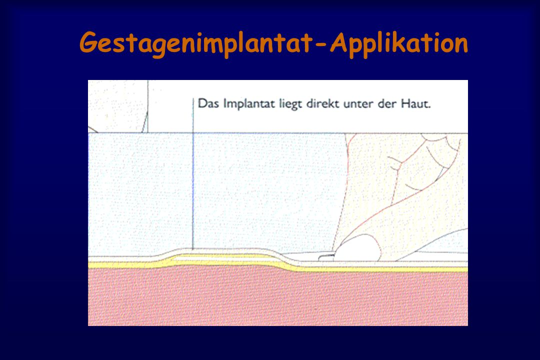 Gestagenimplantat-Applikation
