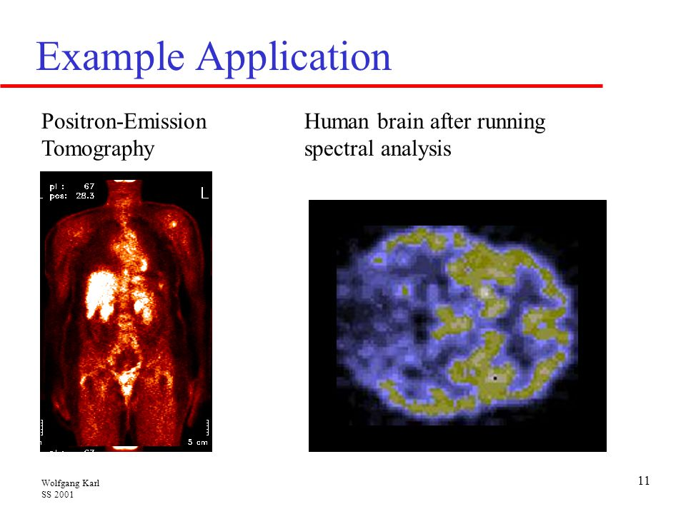 Example Application Positron-Emission Tomography