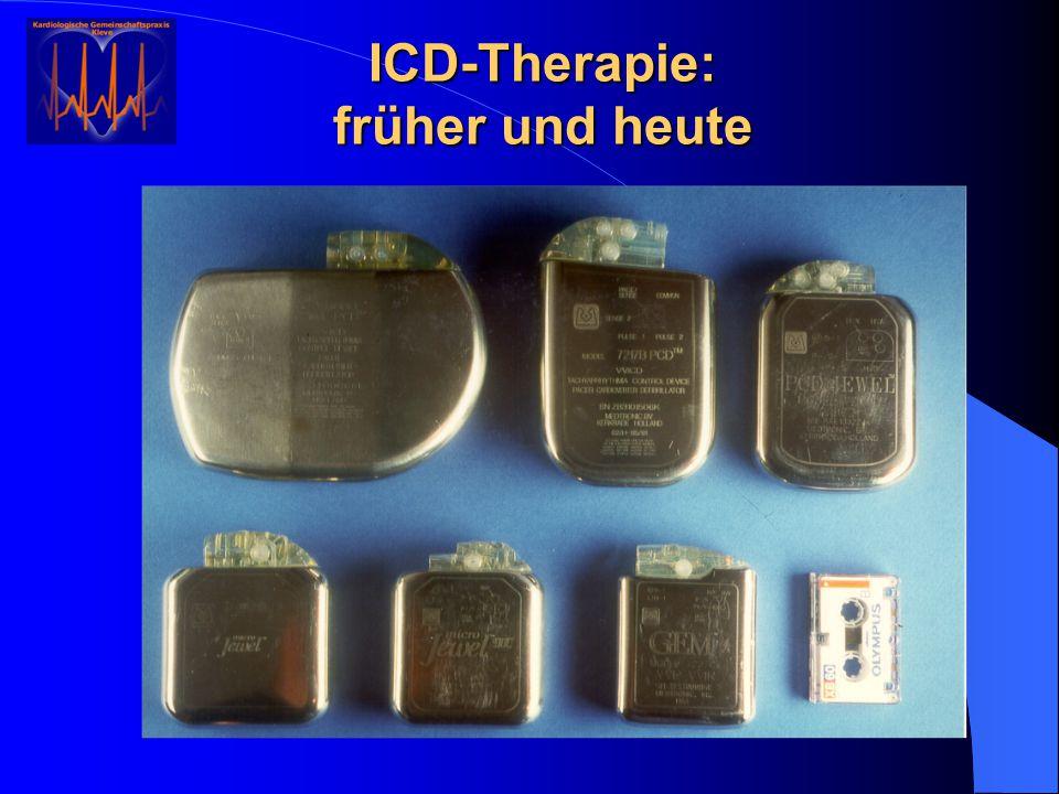 ICD-Therapie: früher und heute