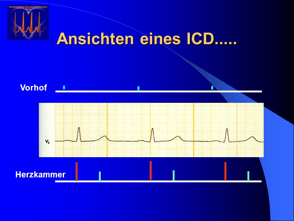 Ansichten eines ICD..... Vorhof Herzkammer