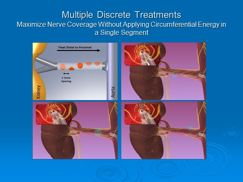 Multiple Discrete Treatments Maximize Nerve Coverage Without Applying Circumferential Energy in a Single Segment