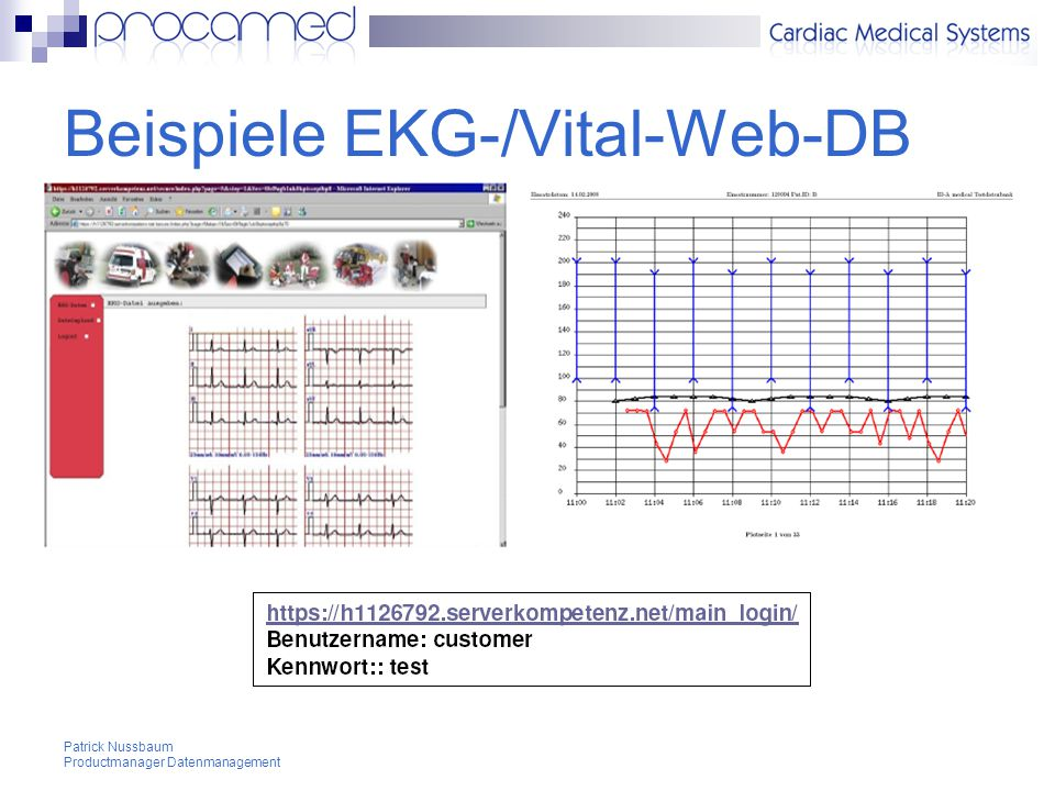 Beispiele EKG-/Vital-Web-DB