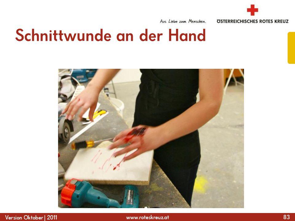 Schnittwunde an der Hand