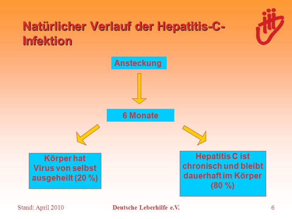 Natürlicher Verlauf der Hepatitis-C-Infektion