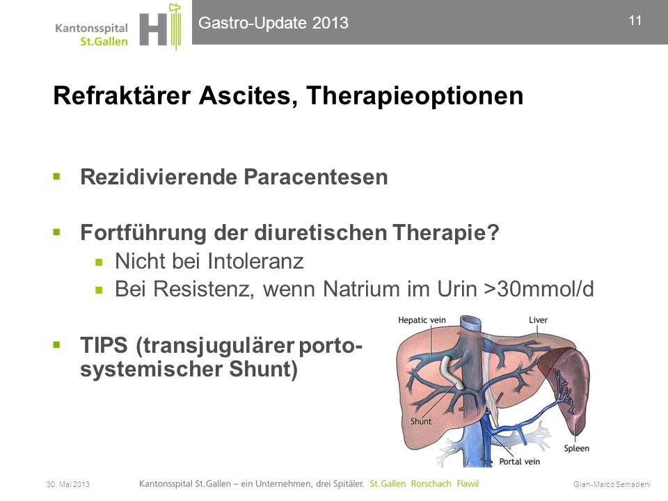Refraktärer Ascites, Therapieoptionen