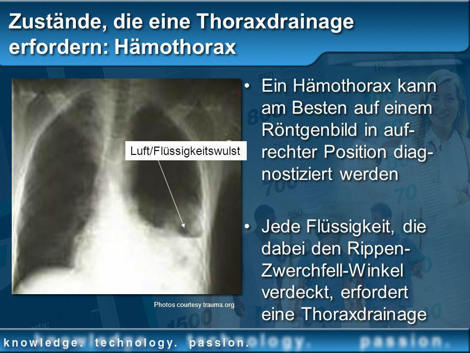 Zustände, die eine Thoraxdrainage erfordern: Hämothorax