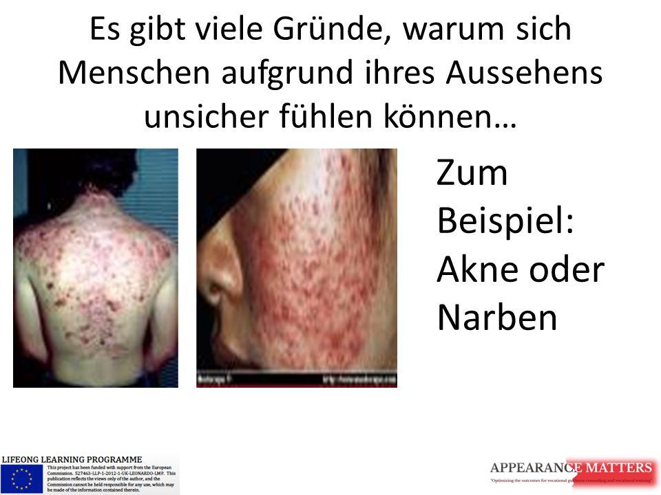 Zum Beispiel: Akne oder Narben