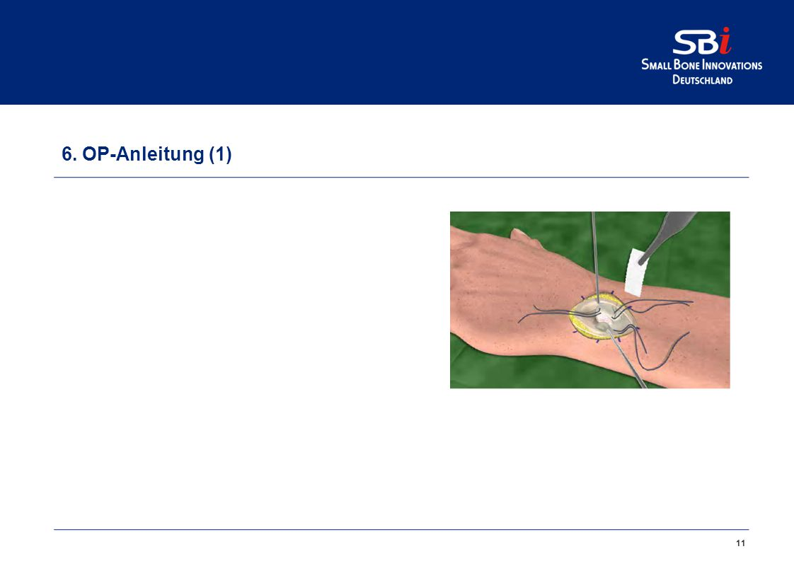 5. Einsatzgebiet Primäre und sekundäre Osteoarthrose des DRU-Gelenks.