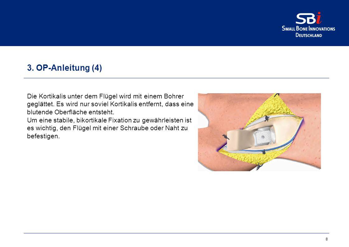 3. OP-Anleitung (3)