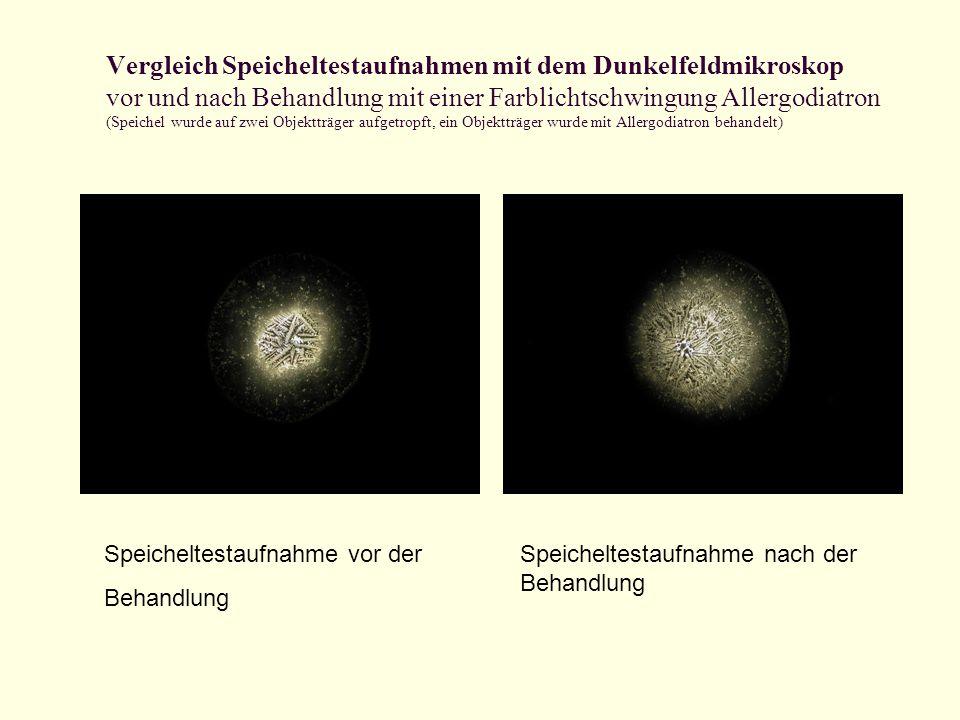 Vergleich Speicheltestaufnahmen mit dem Dunkelfeldmikroskop vor und nach Behandlung mit einer Farblichtschwingung Allergodiatron (Speichel wurde auf zwei Objektträger aufgetropft, ein Objektträger wurde mit Allergodiatron behandelt)