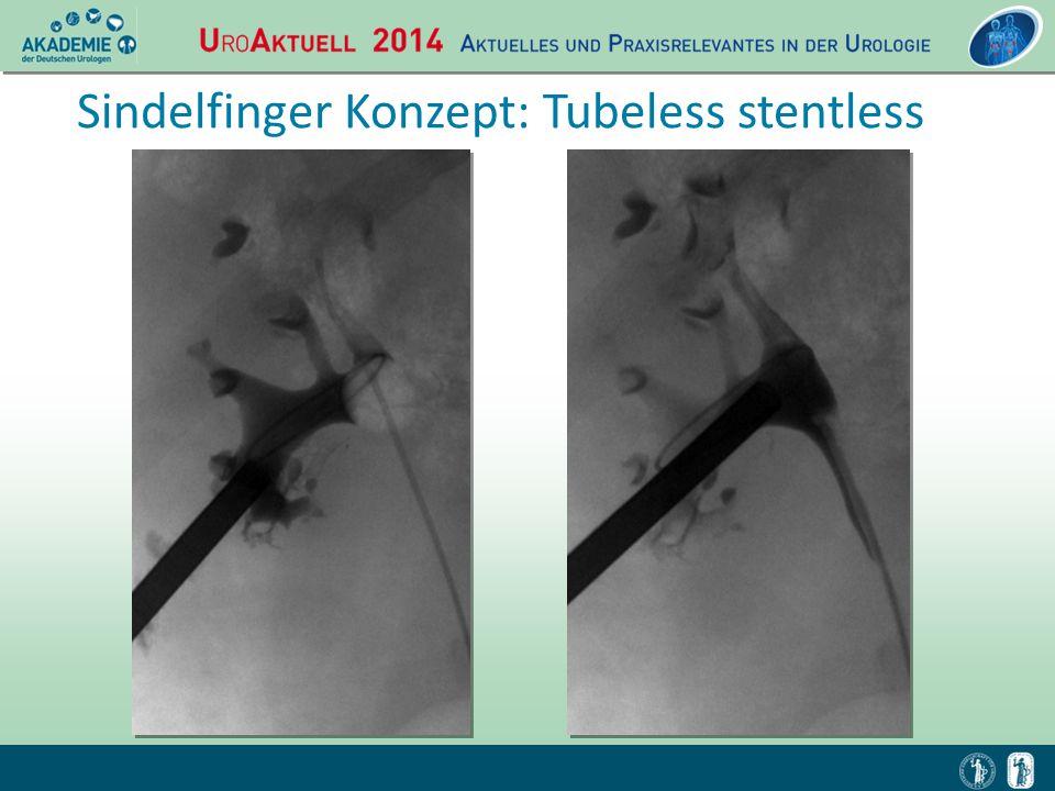 Sindelfinger Konzept: Tubeless stentless