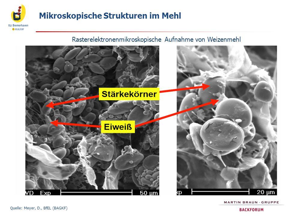 Rasterelektronenmikroskopische Aufnahme von Weizenmehl