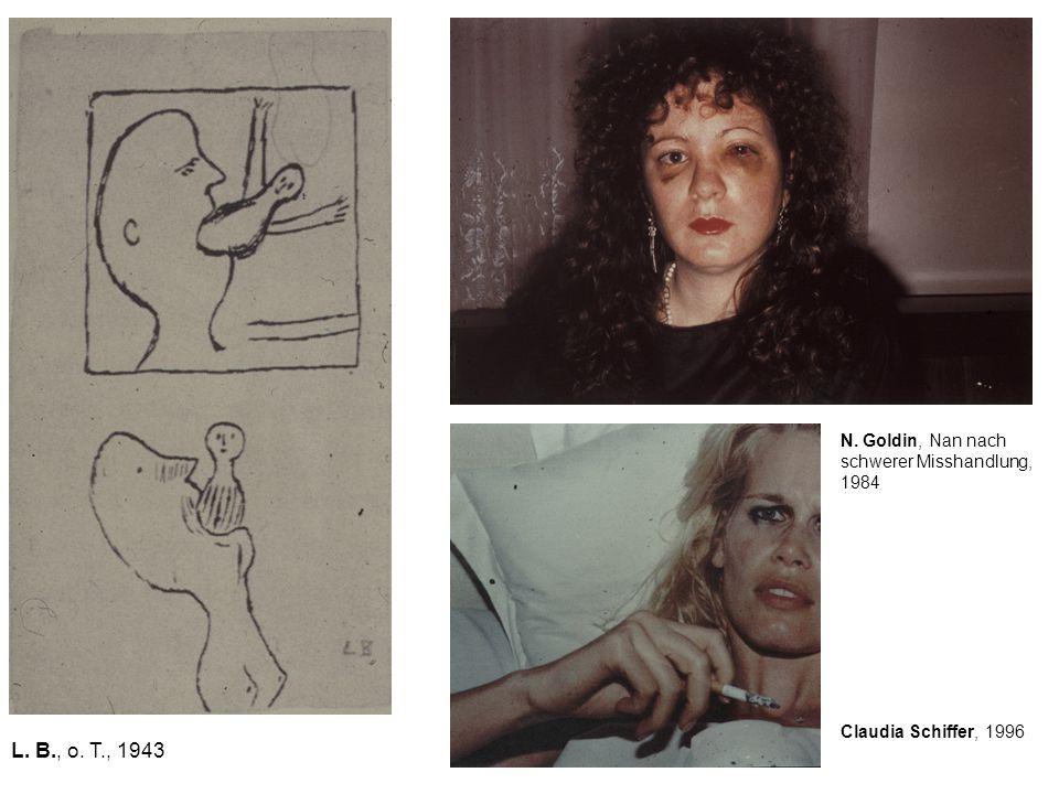 L. B., o. T., 1943 N. Goldin, Nan nach schwerer Misshandlung, 1984