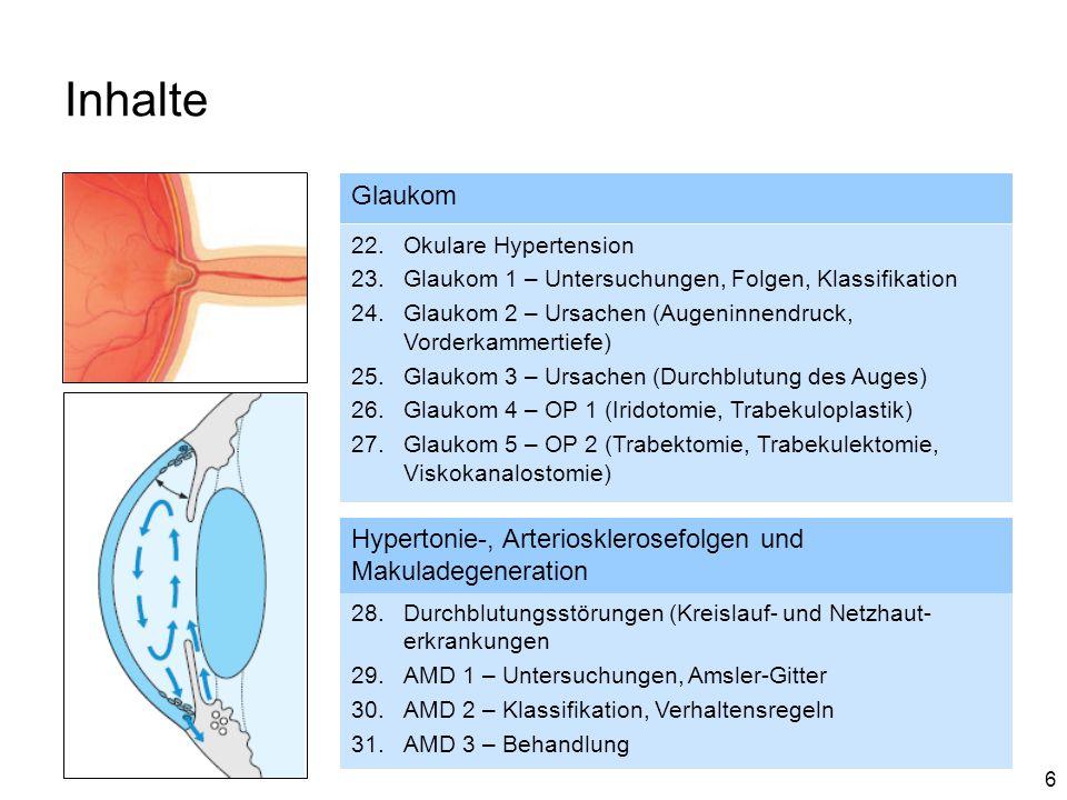 Inhalte Glaukom. Okulare Hypertension. Glaukom 1 – Untersuchungen, Folgen, Klassifikation.