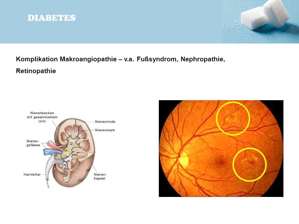 Komplikation Makroangiopathie – v. a