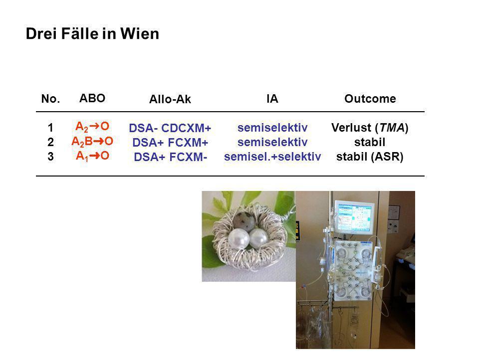 Drei Fälle in Wien No. 1 2 3 ABO A2➜O A2B➜O A1➜O Allo-Ak DSA- CDCXM+