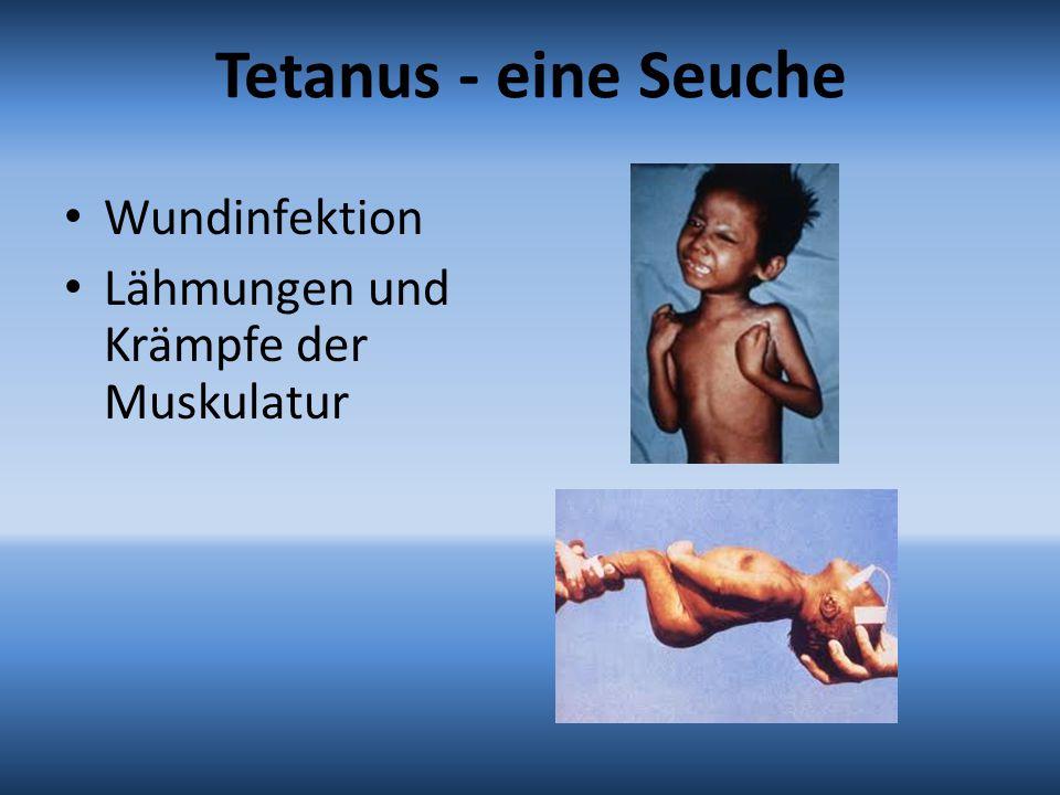 Tetanus - eine Seuche Wundinfektion