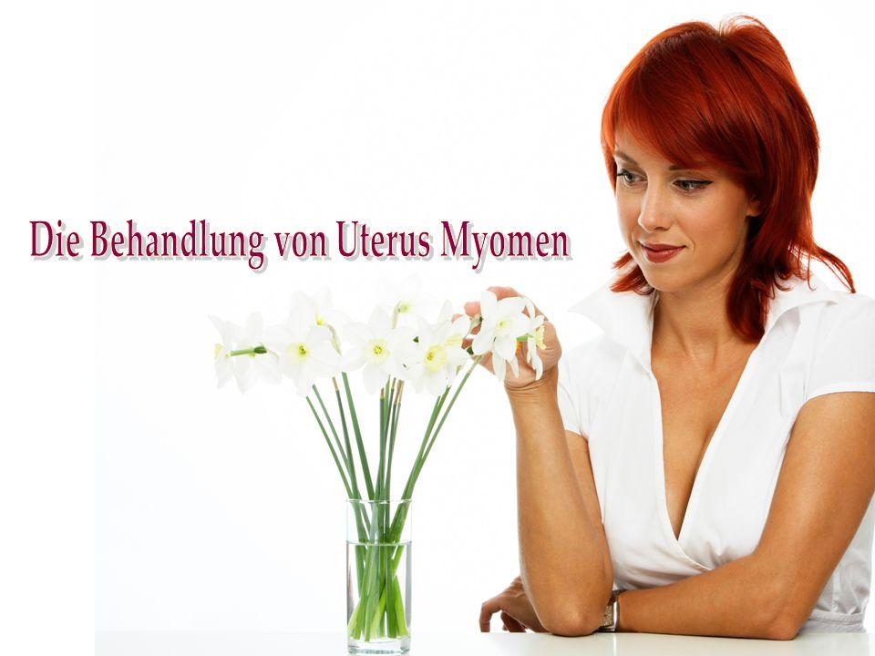 Die Behandlung von Uterus Myomen