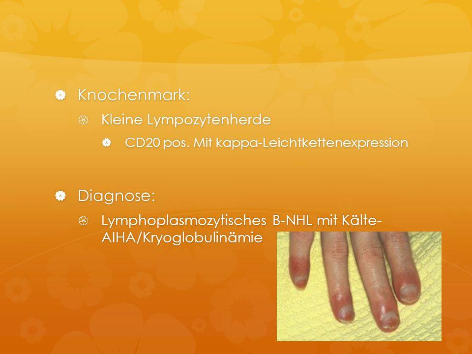 Knochenmark: Diagnose: Kleine Lympozytenherde