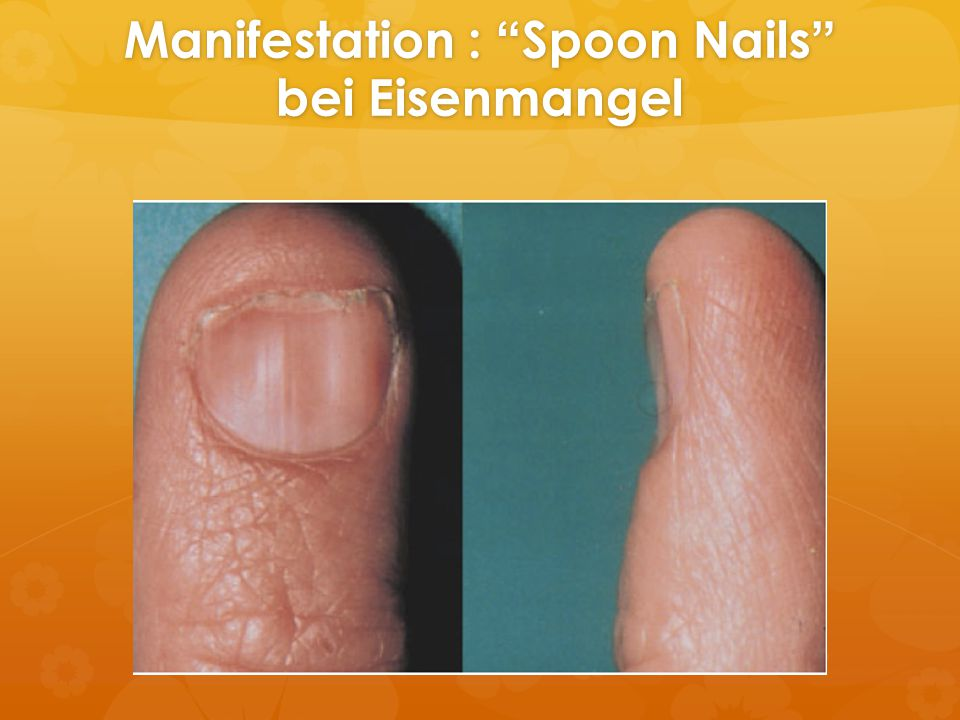 Manifestation : Spoon Nails bei Eisenmangel