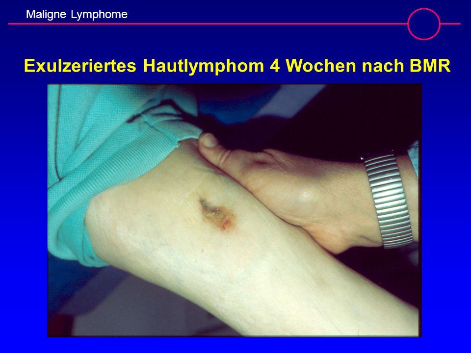 Exulzeriertes Hautlymphom 4 Wochen nach BMR