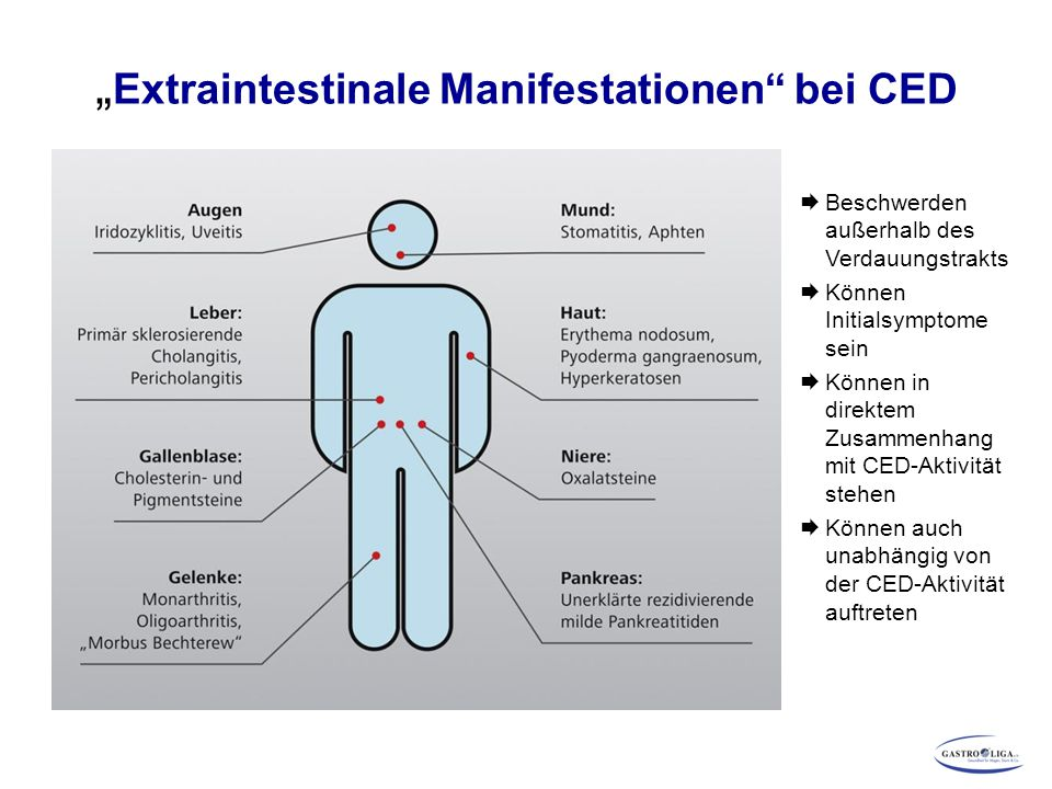 """""""Extraintestinale Manifestationen bei CED"""