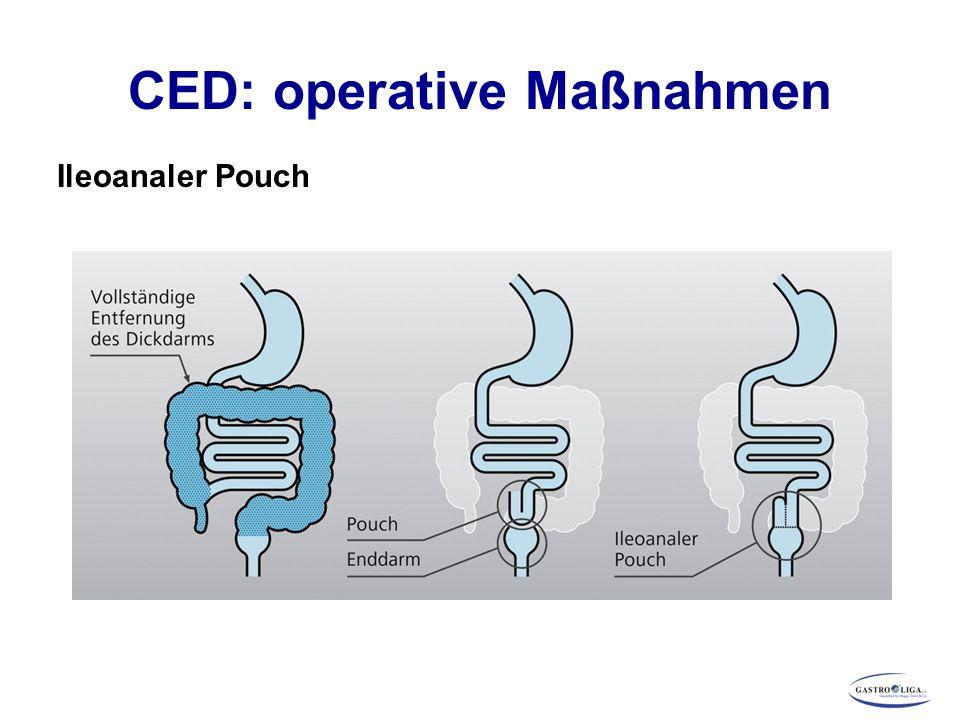 CED: operative Maßnahmen