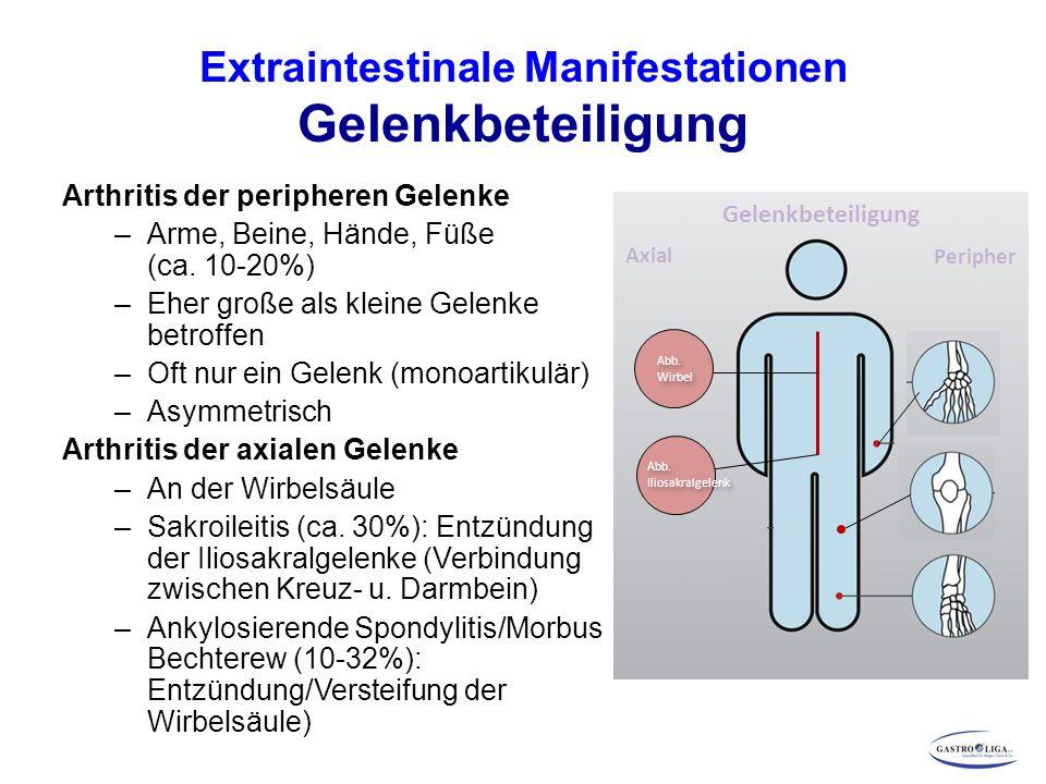 Extraintestinale Manifestationen Gelenkbeteiligung