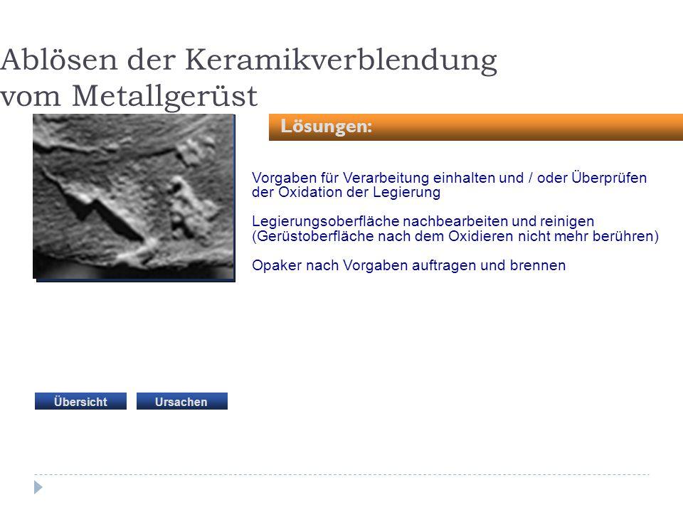 Ablösen der Keramikverblendung vom Metallgerüst