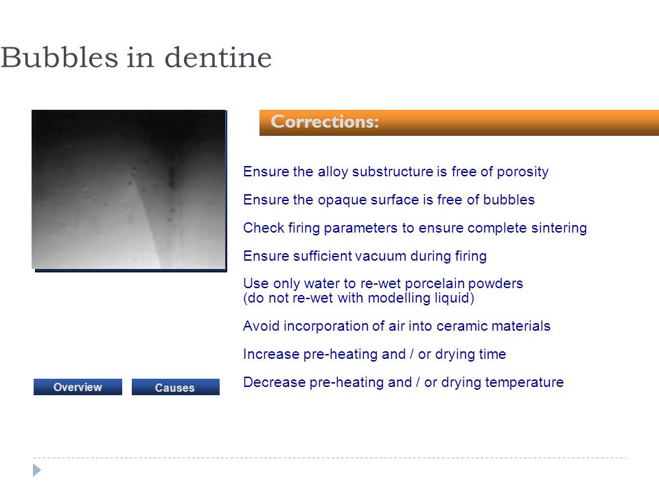 Bubbles in dentine Corrections:
