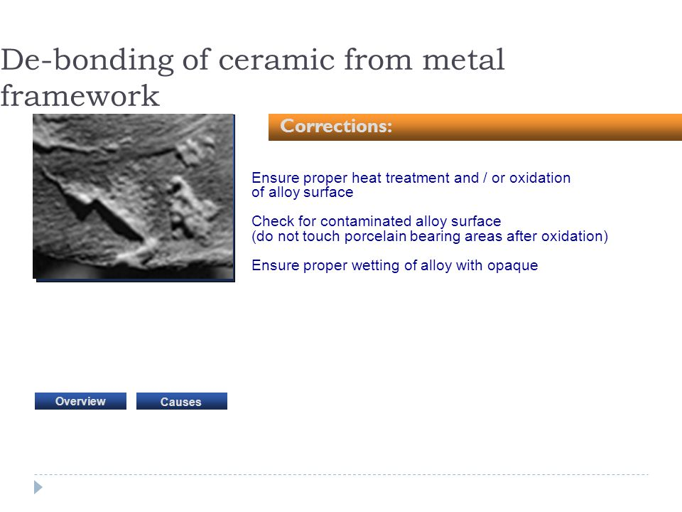 De-bonding of ceramic from metal framework