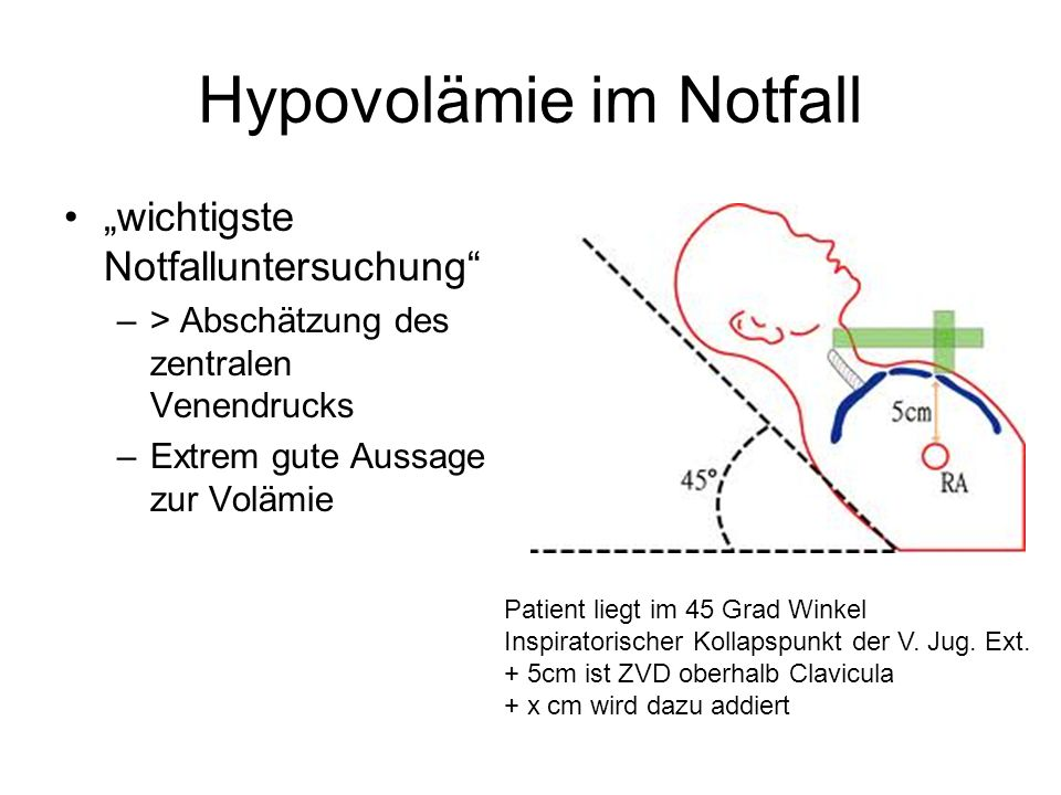 Hypovolämie im Notfall