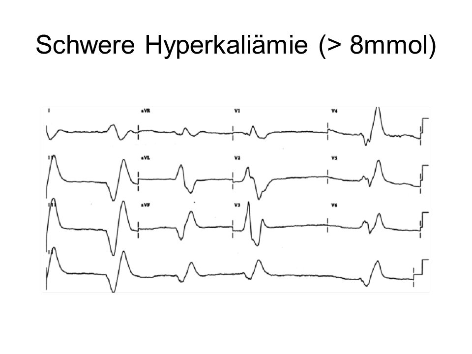 Schwere Hyperkaliämie (> 8mmol)