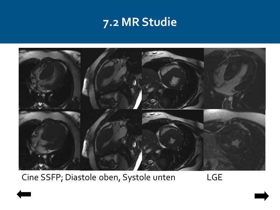 7.2 MR Studie Cine SSFP; Diastole oben, Systole unten LGE