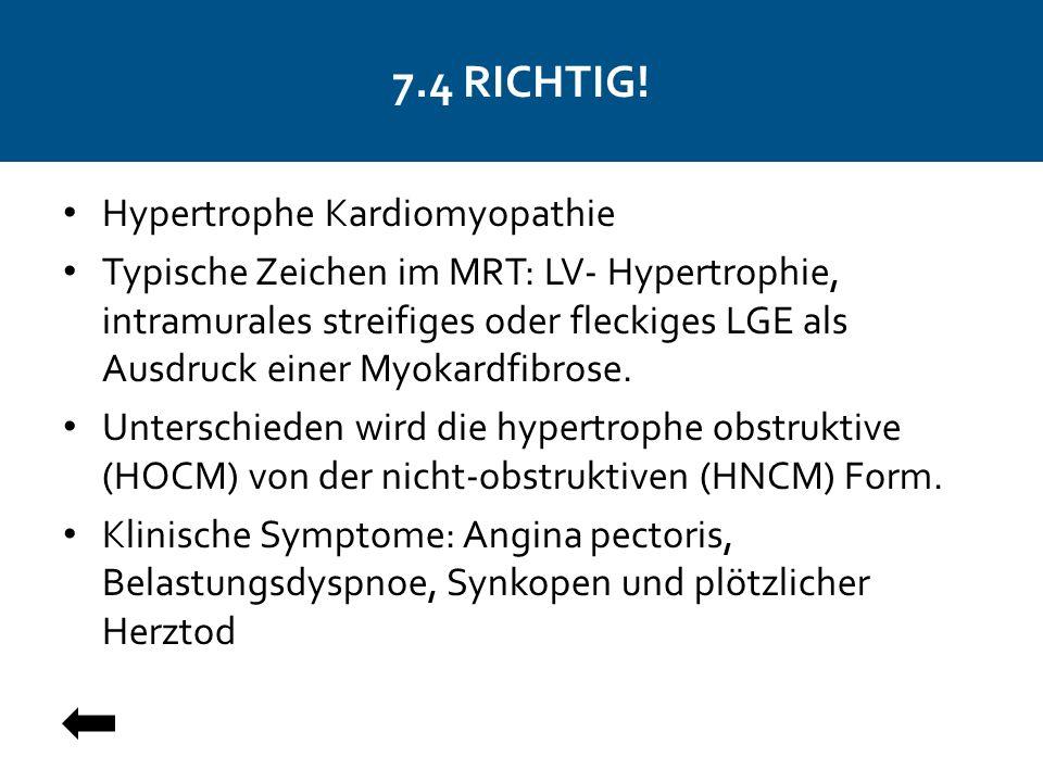 7.4 RICHTIG! Hypertrophe Kardiomyopathie