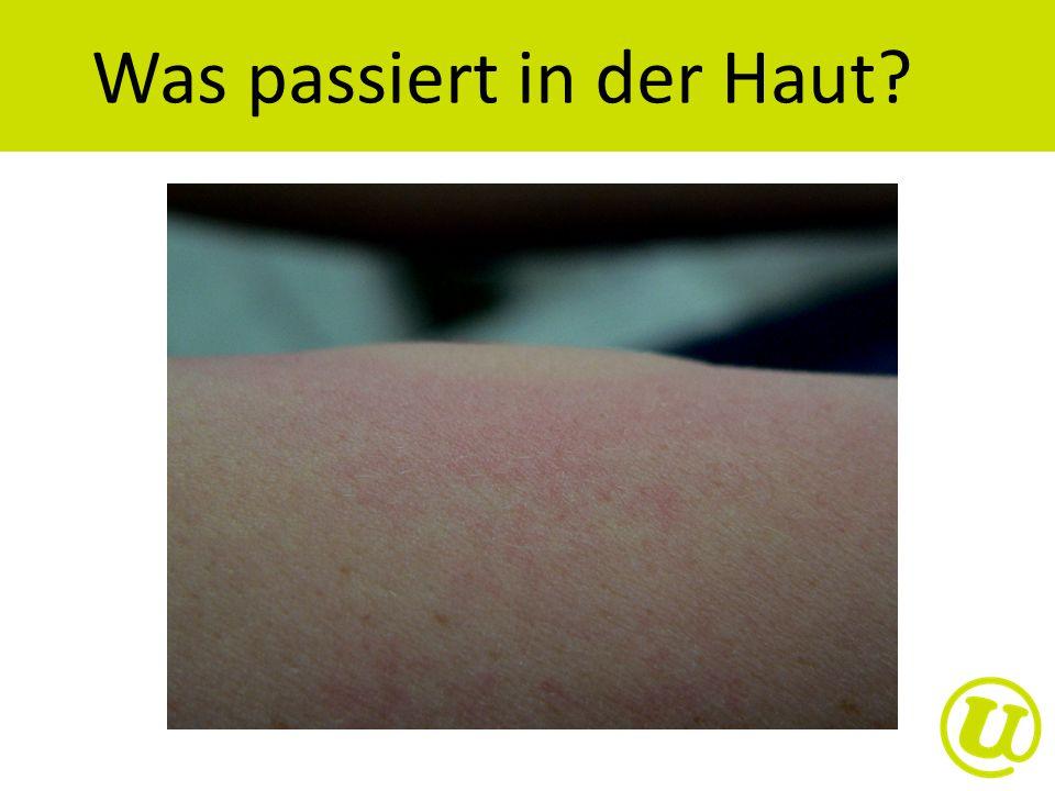 Was passiert in der Haut