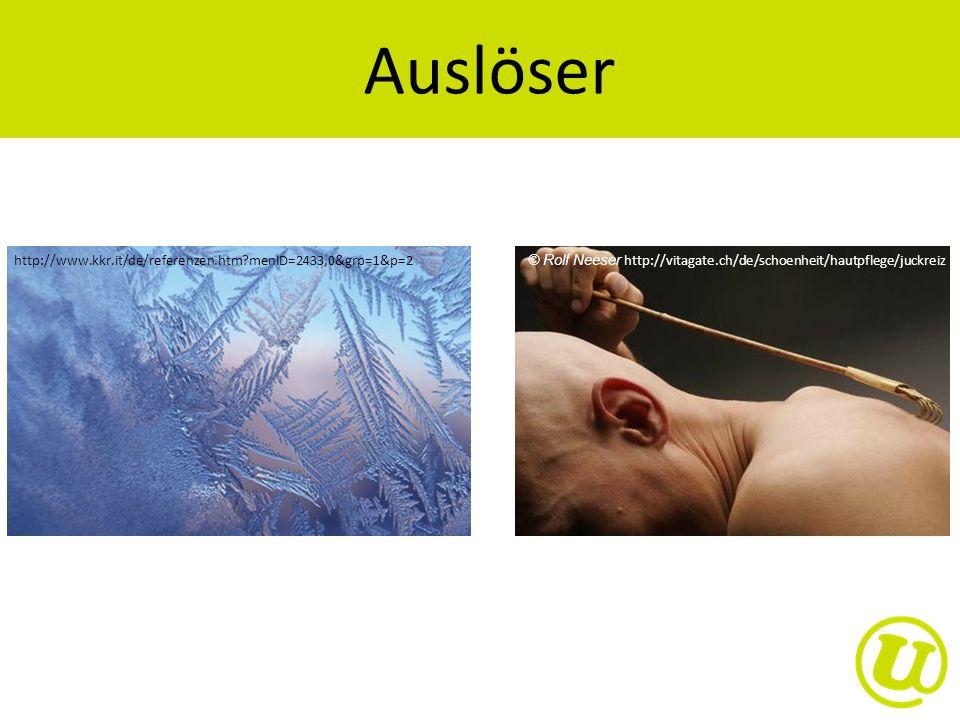Auslöser http://www.kkr.it/de/referenzen.htm menID=2433,0&grp=1&p=2. © Rolf Neeser http://vitagate.ch/de/schoenheit/hautpflege/juckreiz.