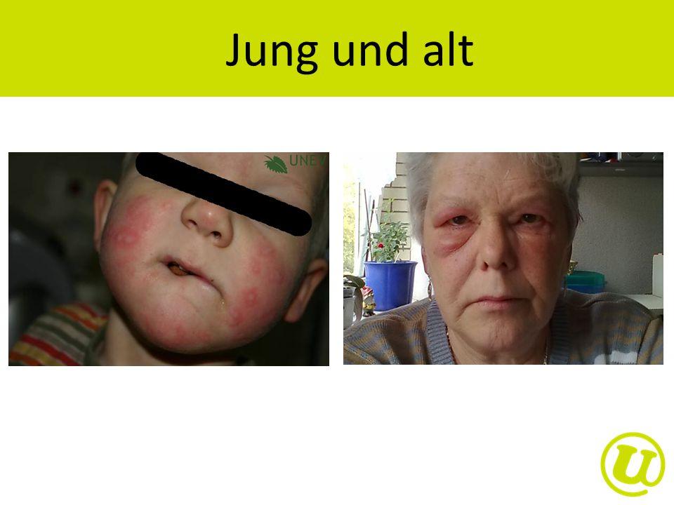 Jung und alt Am häufigsten tritt eine Urtikaria bei jungen Erwachsenen auf.