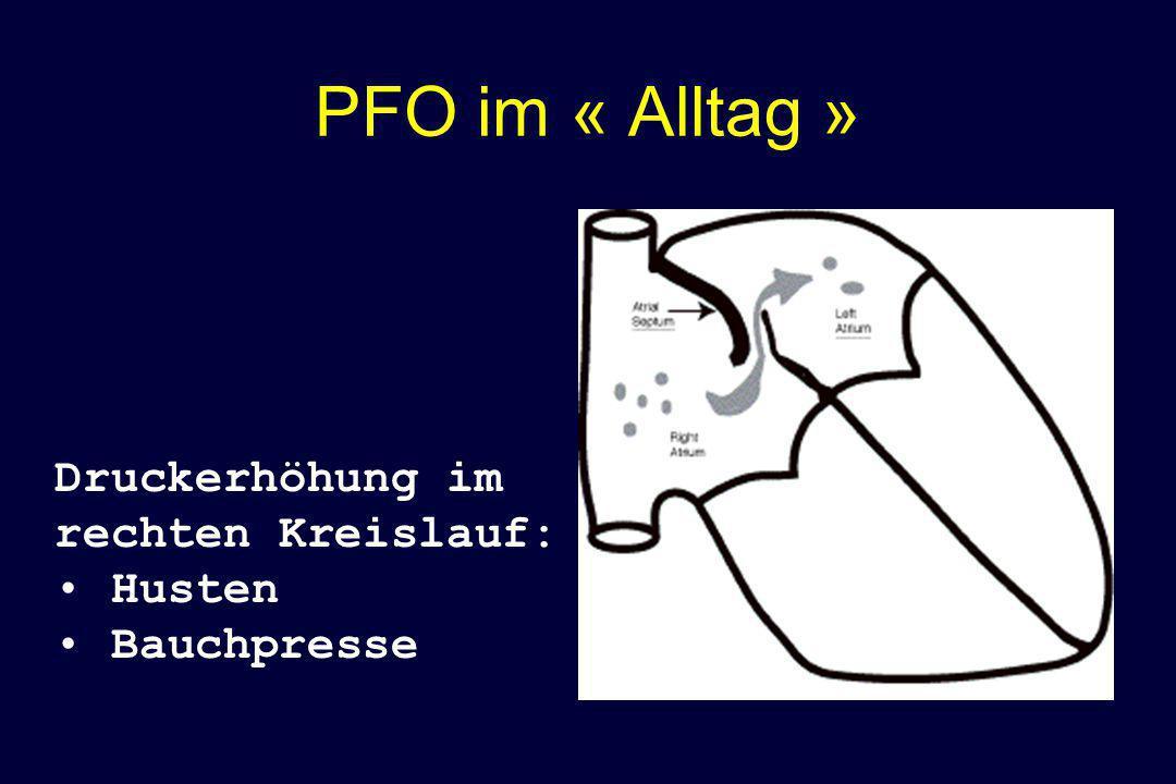 PFO im « Alltag » Druckerhöhung im rechten Kreislauf: Husten