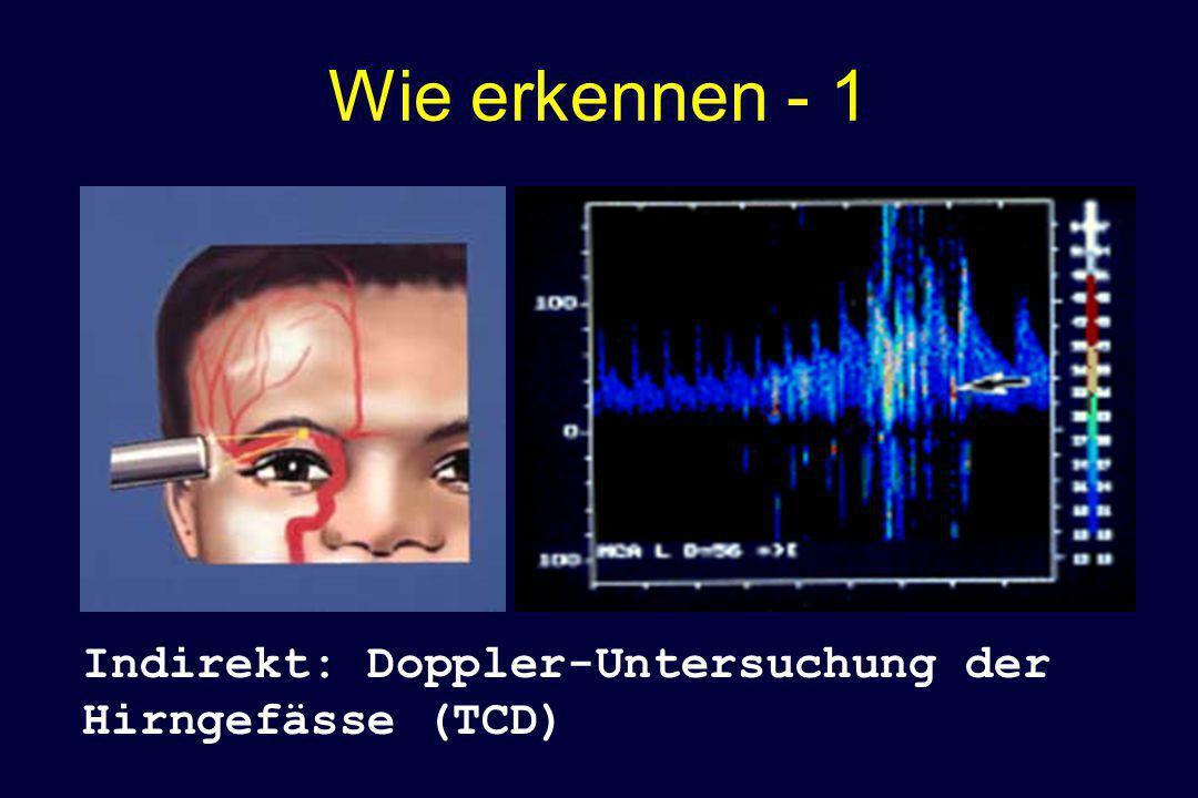 Wie erkennen - 1 Indirekt: Doppler-Untersuchung der Hirngefässe (TCD)