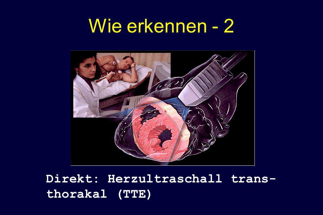 Wie erkennen - 2 Direkt: Herzultraschall trans-thorakal (TTE)