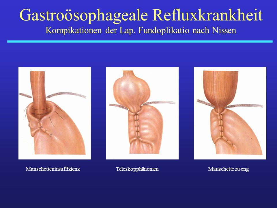 Gastroösophageale Refluxkrankheit Kompikationen der Lap