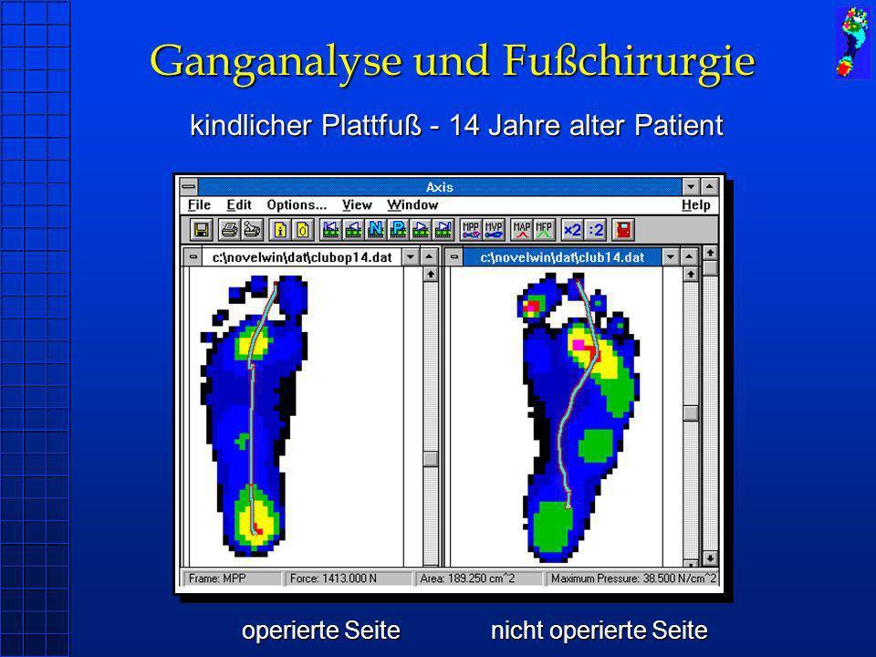 Ganganalyse und Fußchirurgie kindlicher Plattfuß - 14 Jahre alter Patient