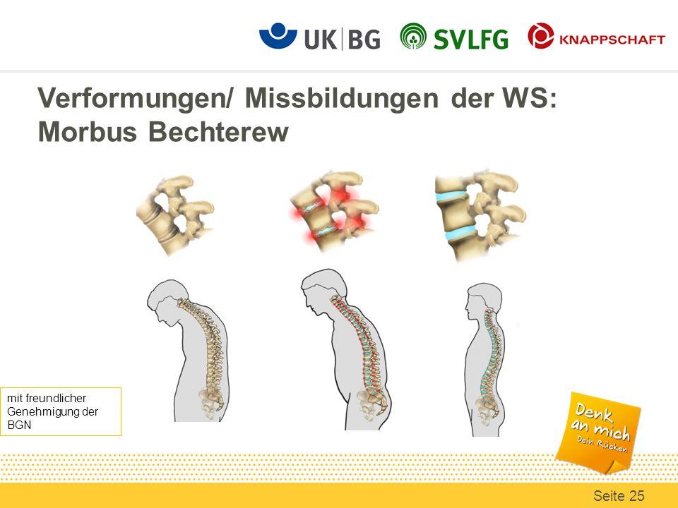Verformungen/ Missbildungen der WS: Morbus Bechterew