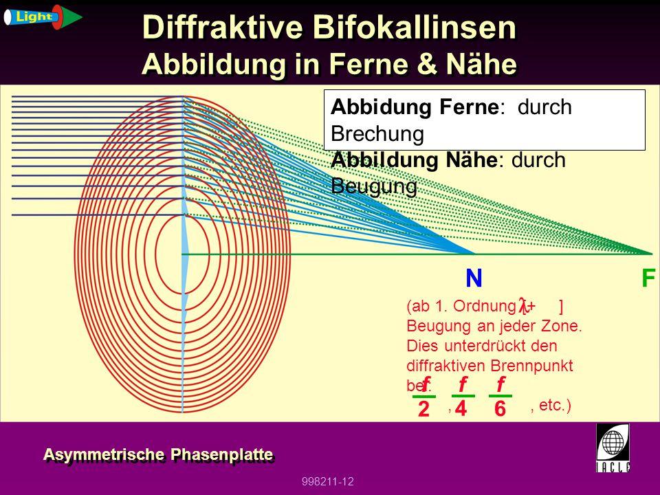 Diffraktive Bifokallinsen Abbildung in Ferne & Nähe